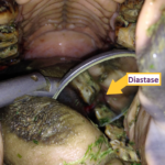 oorzaak periodontal disease - diastase