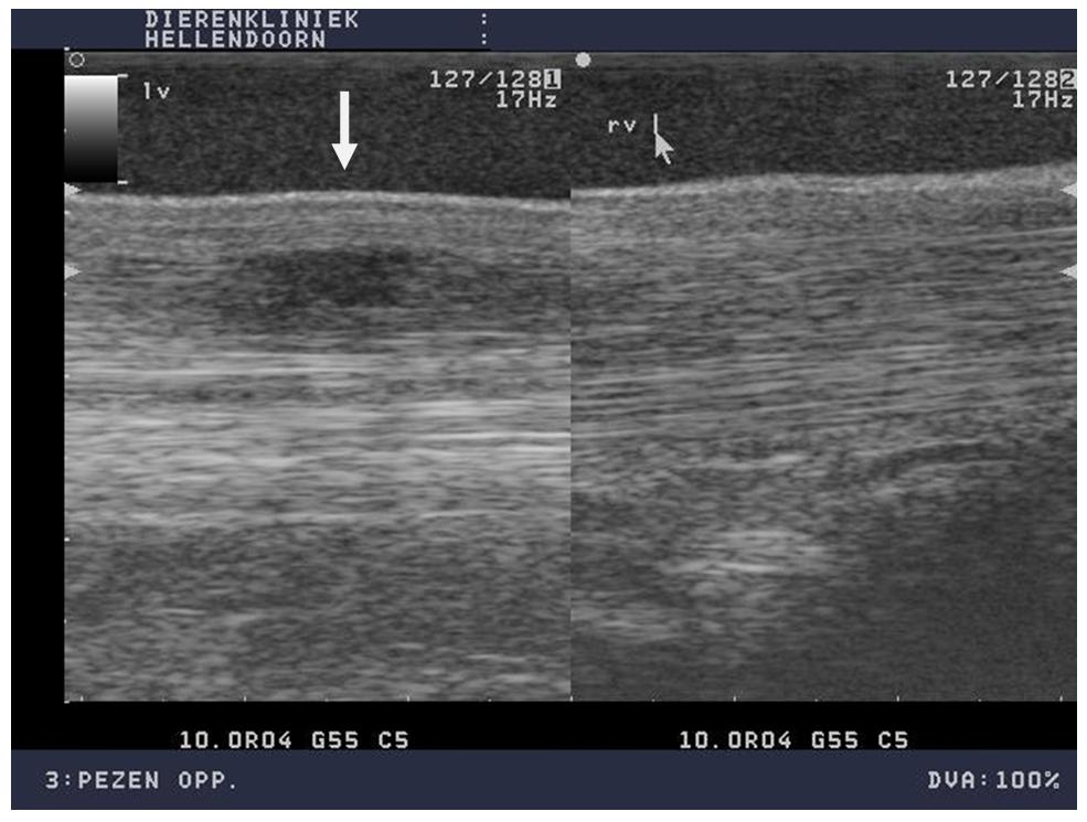 Toelichting foto's: Lengtedoorsnede. Op de beelden zie je links het linker been met de peeslaesie. Het vezelverloop is onderbroken en er is een zwarte (hypoechogene) plek te zien. Rechts is het rechterbeen wat een normaal vezelverloop heeft.