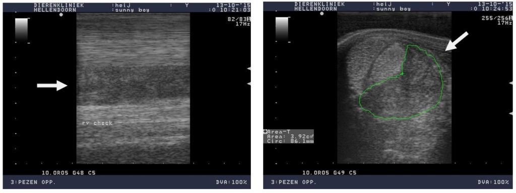 Echobeeld van een blessure aan het check ligament. Sterk verdikt check ligament met verlies van vezelstructuur (pijltjes).