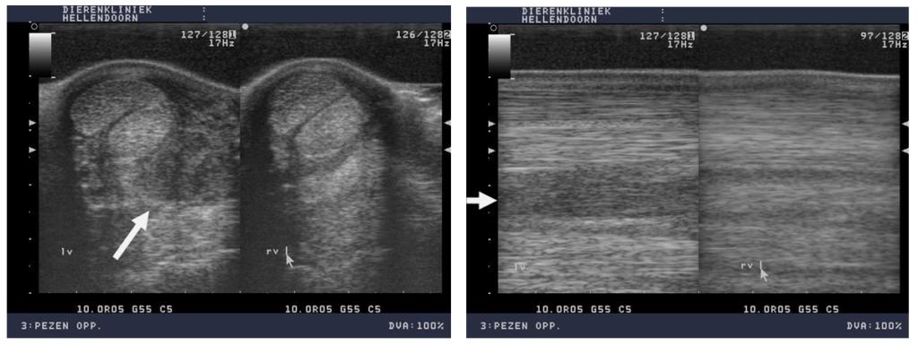 Echobeelden van het checkligament voor revalidatie. Links op de beelden de dwars- en lengtedoorsnede van het linkerbeen met een ernstig verdikt check ligament, met verlies van peesvezels (zwart op de echo). Rechts op de beelden het rechter normale been.