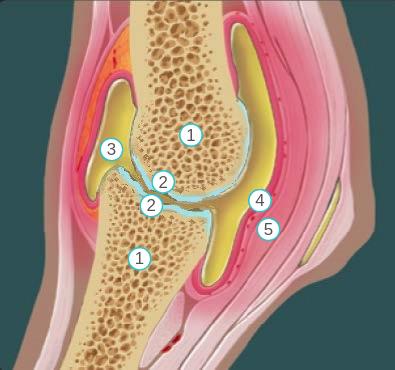 Schematische weergave van een lengtedoorsnede van een kootgewricht (ontstoken en met beschadiging door artrose aan bot en kraakbeen),